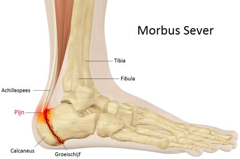 Schets van Morbus Sever situatie Podotherapie Couteaux