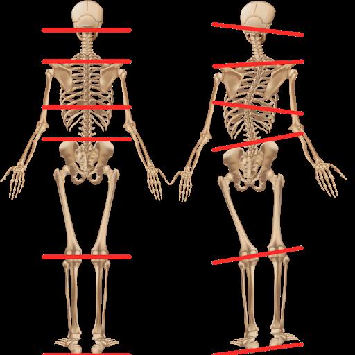 Voorbeeld beenlengteverschil Podotherapie Couteaux