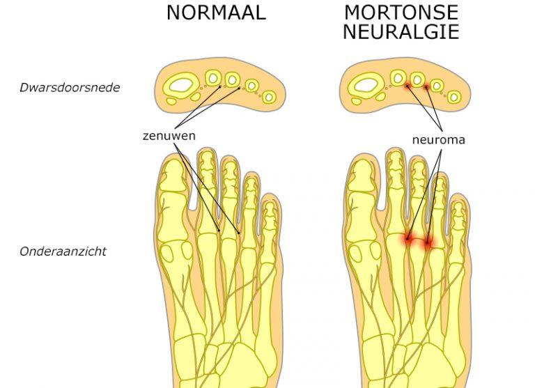 Voorbeeldschets Mortonse Neuralgie Podotherapie Couteaux